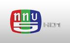 CH5 HD